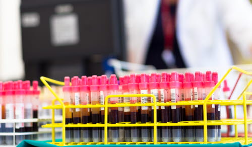Rack of tubes with blood samples, laboratory technician working in the background.